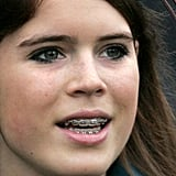 Princess Eugenie flashed her royal braces in 2006.