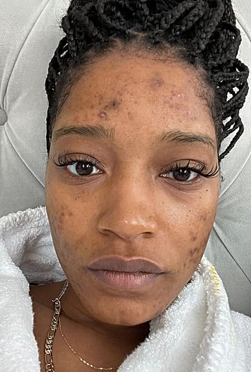 Keke Palmer Opens Up About Her Acne and PCOS