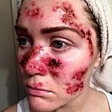 Skin Cancer Selfie