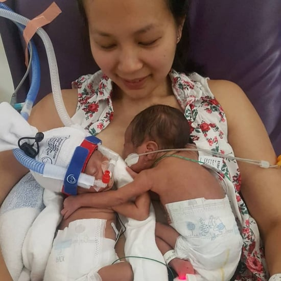 Premature Momo Twins Hug When Meeting For the First Time