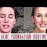 Cassandra Bankson's Acne Foundation Routine