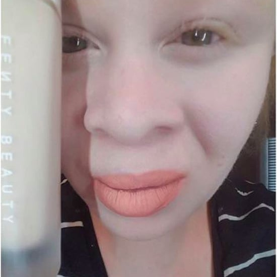 Albino Women's Reviews of Rihanna Fenty Beauty Foundation