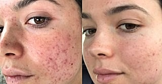 Here's How Bekah From The Bachelor Turned Around Her Severe Acne
