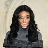 PSA: Winnie Harlow Doesn t  Suffer  From Vitiligo