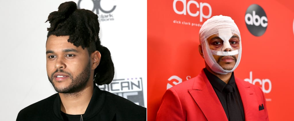 The Weeknd Has Had a Big Beauty Evolution Over the Years