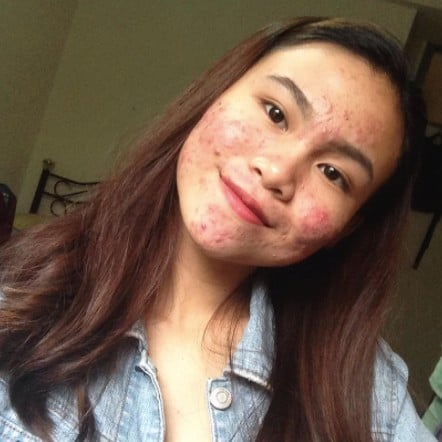 Teen With Severe Acne Posts Bare Face Selfies on Instagram