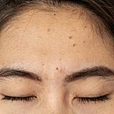 Forehead Breakouts