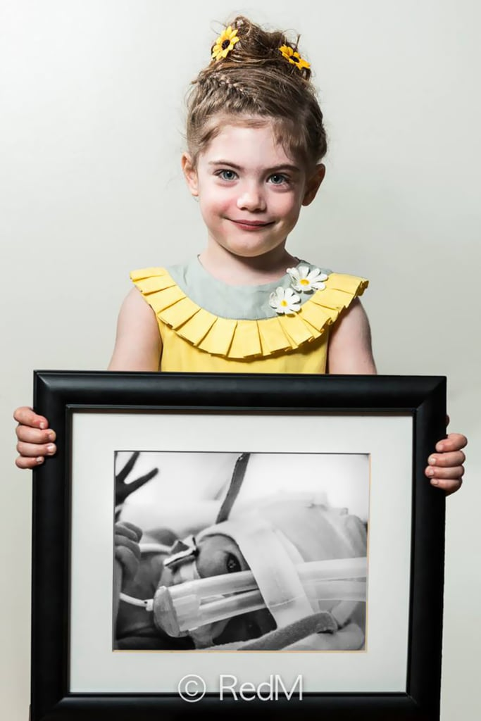Margot, born at 29 weeks | Then and Now Photos of Kids Who