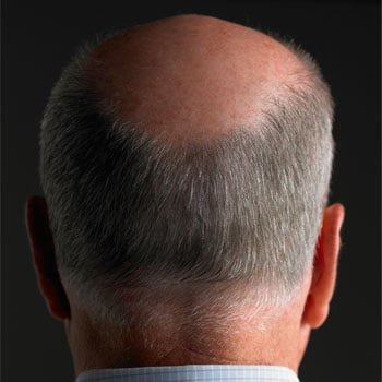 Latisse Could Cure Baldness