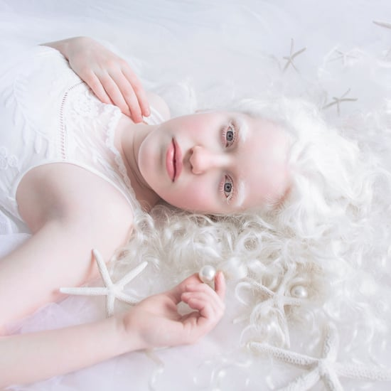 Albinism Photographs Yulia Taits Part 2