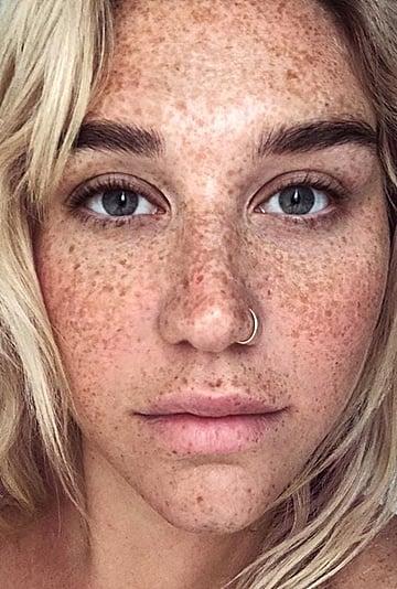 Celebrities With Freckles in No-Makeup Selfies