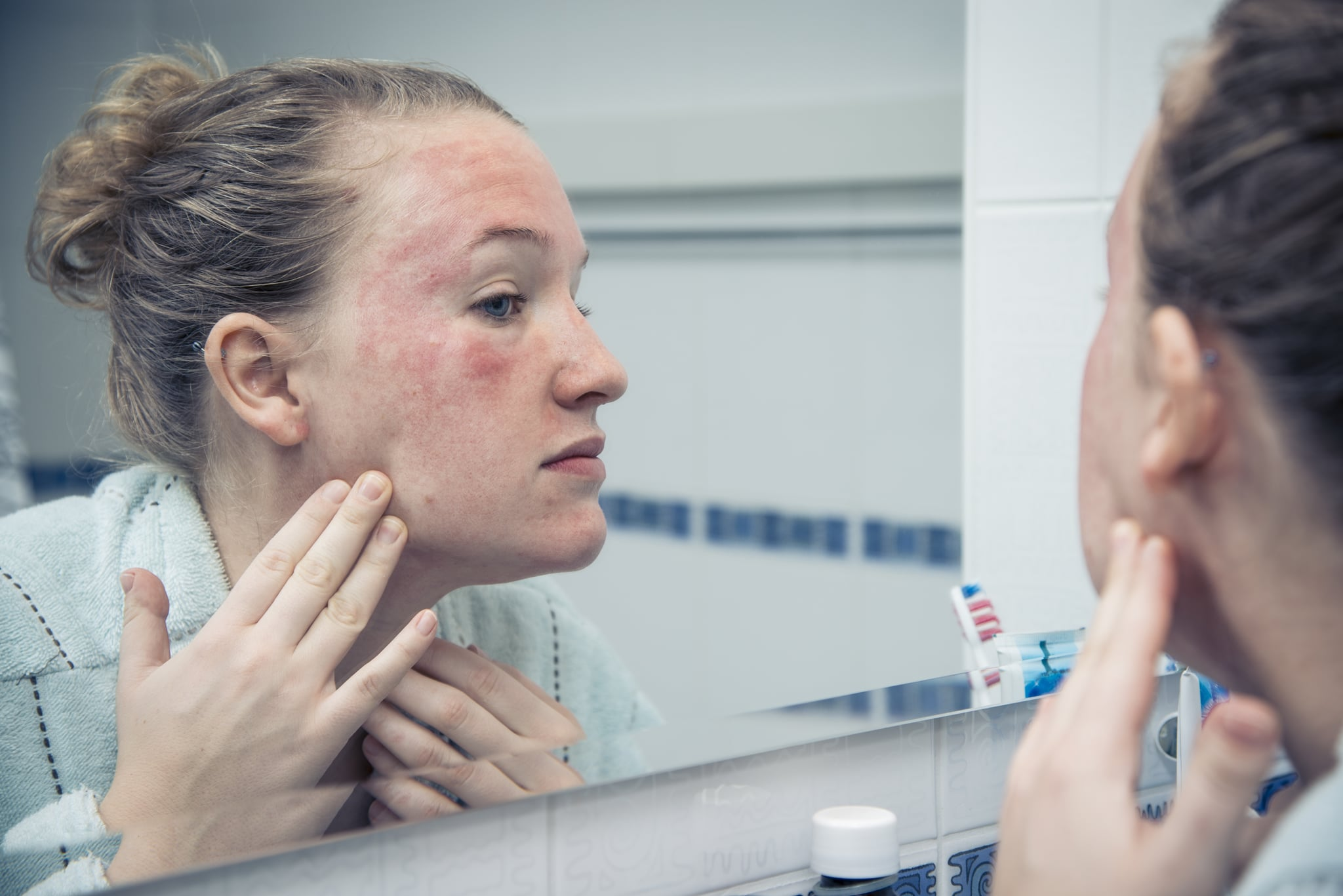 Woman with allergic reaction looking herself in the mirror.