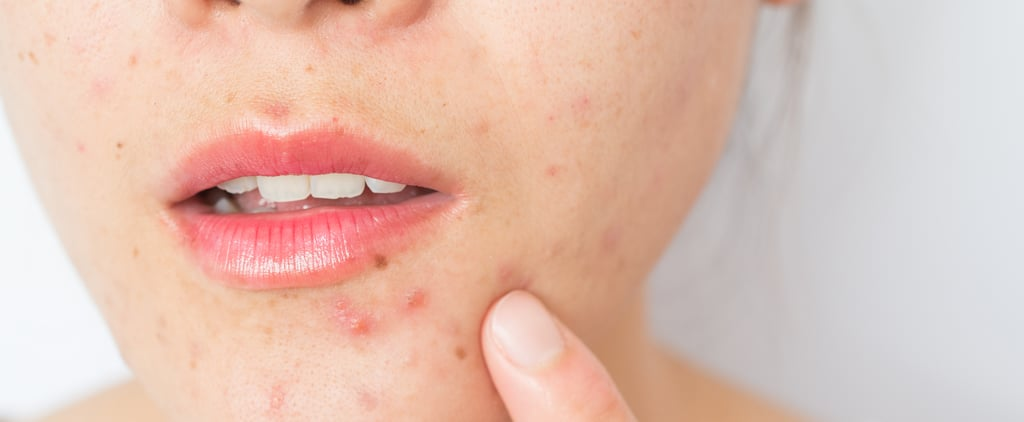PCOS and Acne: Dermatologists Explain Causes and Treatments
