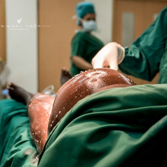 Best C-Section Birth Photos