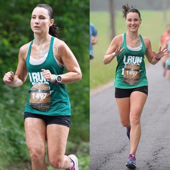 Runner's Side by Side Cellulite Photos