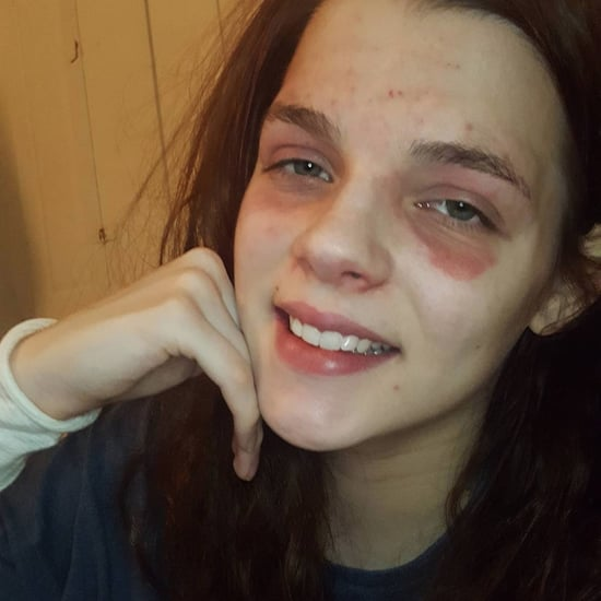Makeup Artist Shows Off Eczema on Instagram