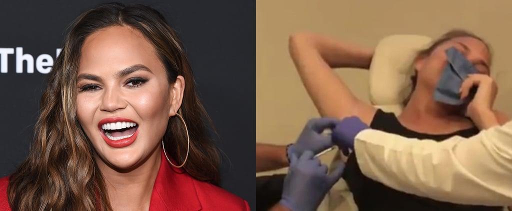 Chrissy Teigen Getting Botox in Her Armpits