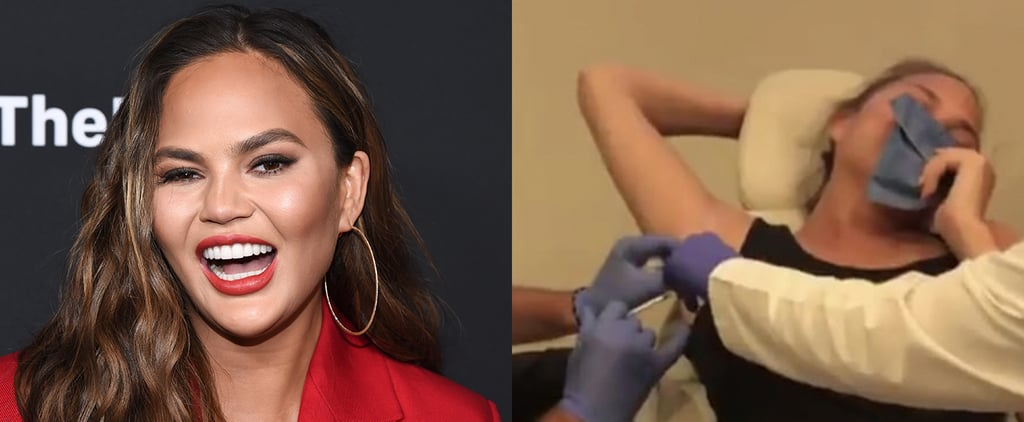 Chrissy Teigen Getting Botox in Her Armpits