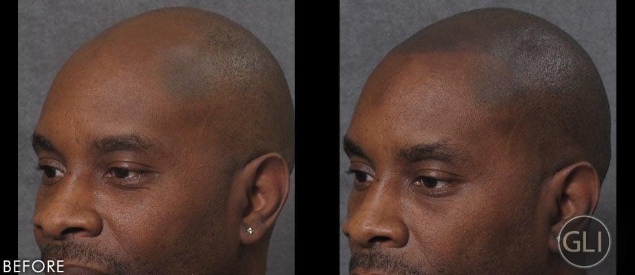 hair tattoos for baldness popsugar beauty photo 7. Black Bedroom Furniture Sets. Home Design Ideas
