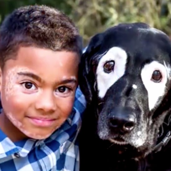 Boy With Vitiligo Meets Dog With Same Condition