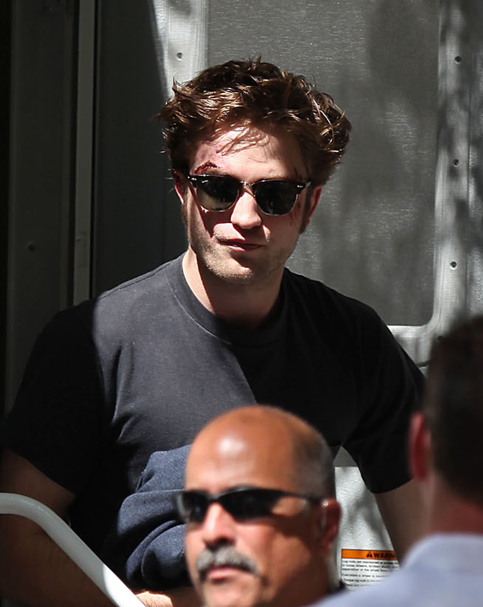 Photos Of Robert Pattinson Looking Bruised, Beaten Up, And