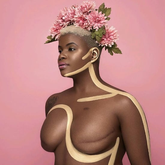 Surviving Breast Cancer With #BlackGirlMagic | Video