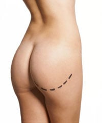 To Overweight Teens: Liposuction Not the Answer