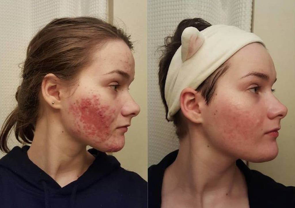 Does Accutane Work Popsugar Beauty Australia