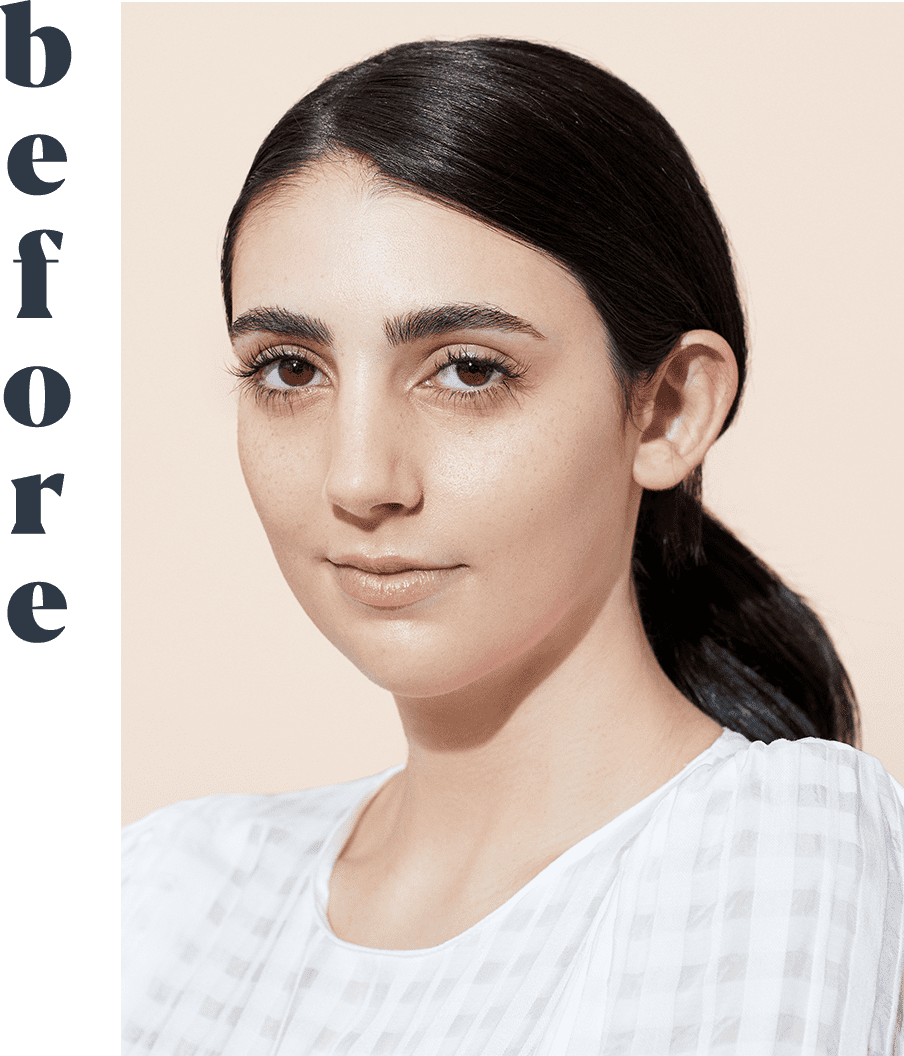 Why This First-of-Its-Kind Face Treatment Is So Worth It