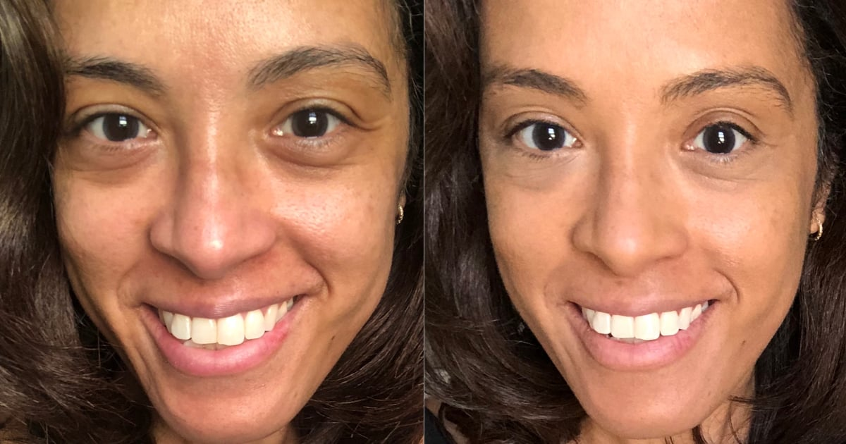 I Put This Alpyn Beauty Eye Balm Under My Concealer, and It's Never Looked Better
