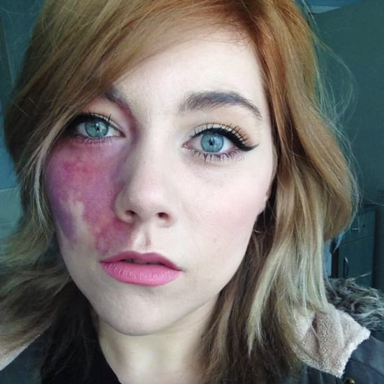 Woman With Birthmark Told She Is Undateable