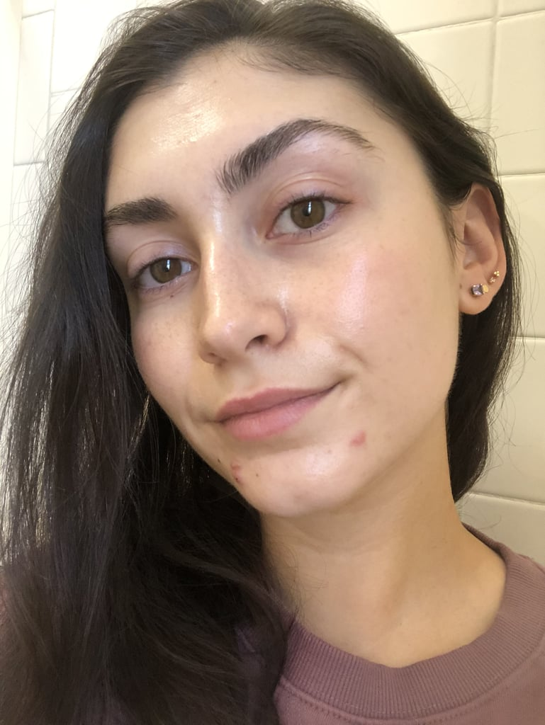 """Now, let me preface this by saying I've tried a lot of acne treatments during my time as a beauty editor and beyond that. While some have mildly helped the issue, I'm usually left with a sense of discouragement because they take so long to """"work"""" that I feel as if they really didn't do much at all. Before trying the Perricone MD Acne Relief Maximum Strength Spot Gel, I was under the impression that treating a pimple with anything less than a cortisone shot was a myth and that breakouts would simple pass when it was time and not a second before."""